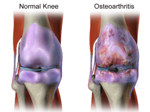 normal knee vs osteoarthritis
